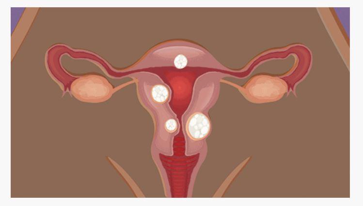 fibromas uterinos y dolor pélvico